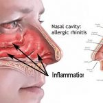 natural remedies for nasal congestion