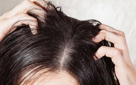 How can I get rid of dandruff permanently